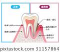 건강한 치아와 잇몸 질환의 치아 비교 31157864