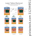Laser Tattoo Removal 31294951
