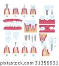 Dental crowns and implantation 31359931