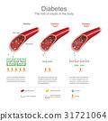 bloodstream diabetes vector 31721064