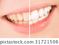 Whiten - smile and teeth whitening treatment before and after. 31721506