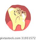ทันตกรรม,ฟัน,หมอฟัน 31931572