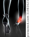 Ankle painful - skeleton x-ray. 31983023