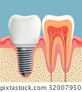 Human tooth in cross-section and dental implant. 32007950