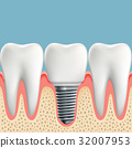 Human teeth and Dental implant. 32007953