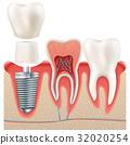 Dental implant set. EPS 10 32020254