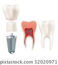 Dental implant set. EPS 10 32020971
