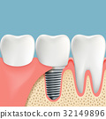 Human teeth and Dental implant. 32149896