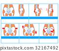 骨盆變形/分類圖1(藍色,無解釋) 32167492