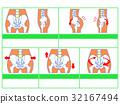 骨盆變形/分類圖3(綠色,無解釋) 32167494