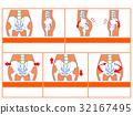 骨盆變形和分類圖4(橙色·無解釋) 32167495