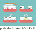 Brushing make hurt gum and teeth, decayed teeth  32234531