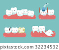 Check up decayed tooth , Wisdom tooth of dental  32234532