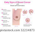 Early signs of breast cancer 32234873