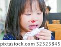 Little asian girl with bleeding nose 32323845