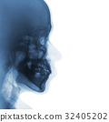 Film x-ray of normal human skull . lateral view . 32405202