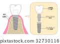 植入 解释性说明 牙科图像 32730116