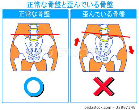 骨盆扭曲的比较(正常,扭曲)(蓝色,带字) 32997349