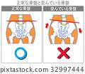 骨盆扭曲的比较(正常/扭曲)(灰色,带字) 32997444