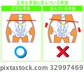 骨盆扭曲的比较(正常,扭曲)(绿色,带字) 32997469