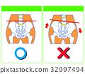 骨盆扭曲的比较(正常,扭曲)(绿色,无字) 32997494