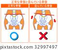 骨盆扭曲的比较(正常/扭曲)(橙色,带字) 32997497