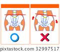 骨盆扭曲的比较(正常,扭曲)(橙色,无字) 32997517