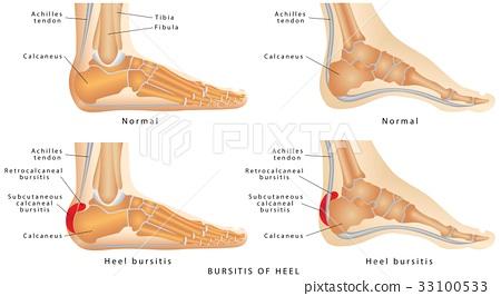 Heel Bursitis 33100533