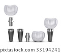 The tooth implant 33194241