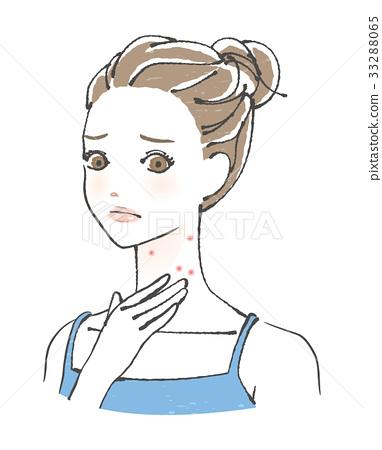 acne, neck, female 33288065
