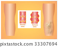 Varicose veins on a female senior leg 33307694