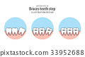 Braces teeth step in circle illustration vector 33952688