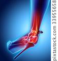 脚踝 疼痛 伤害 33955658