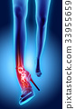 Ankle high heeled painful - skeleton x-ray. 33955659