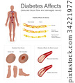 diabetes diabetic concept 34221977