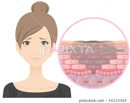 女性(污點) 34224364