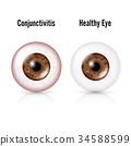 Conjunctivitis. Red Eye. Healthy Eye 34588599