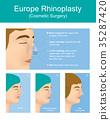Rhinoplasty plastic surgery. 35287420