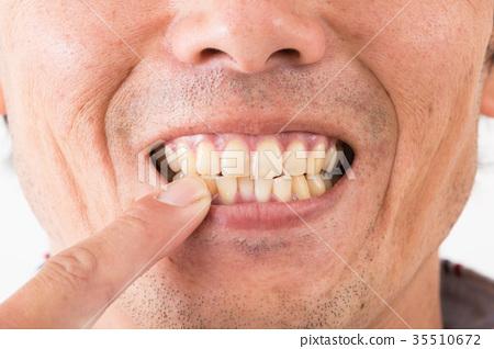 Dental care 35510672