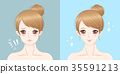 woman with chin surgery 35591213