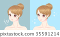 woman with chin surgery 35591214