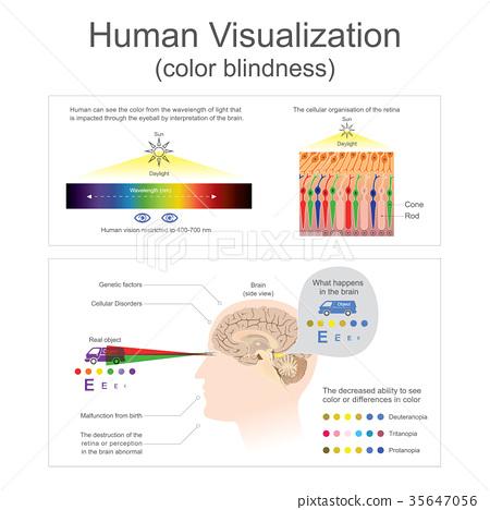 Human Visualization Color blindness.. 35647056