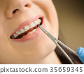 Woman with ceramic braces on teeth at the dental office 35659345