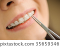 Woman with ceramic braces on teeth at the dental office 35659346