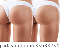 Hips with scars before and after treatment. 35683254