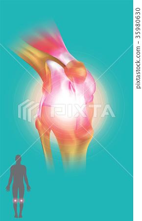 Knee Joint symptom 35980630