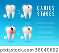 tooth, caries, dental 36040692