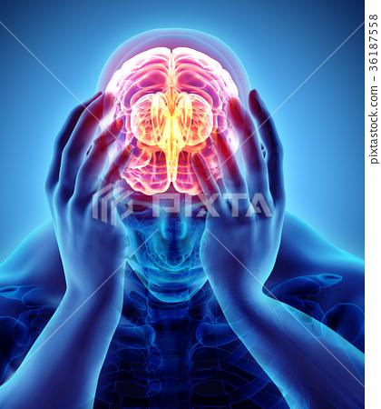 3d illustration of headache human. 36187558