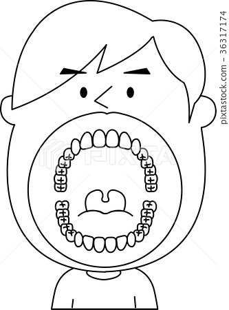32 Adults Wisdom Tooth Teeth Mouth Illustration Vector Monochrome