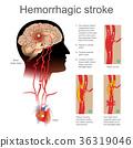 Hemorrhagic stroke. 36319046
